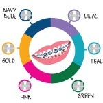 You Don't Have to Be a Genius to Choose Braces Colors thumbnail