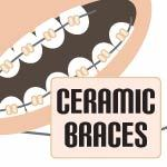 ceramic braces review