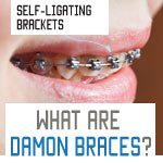 Damon braces system