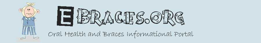 Ebraces.org – Orthodontic Braces Tips, Guides, Reviews header image