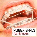 elastics on braces