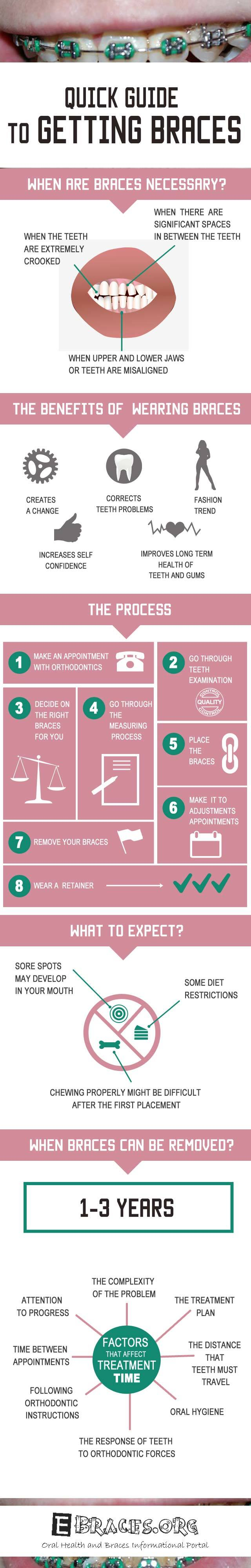 quick guide to getting braces infographic