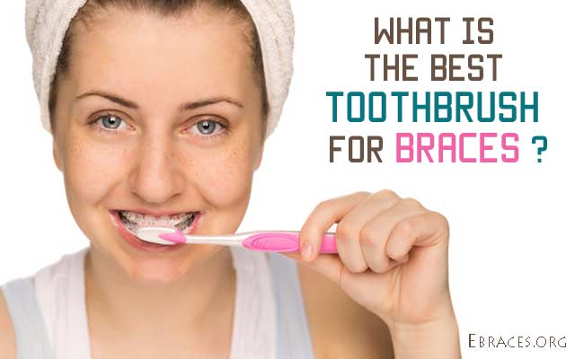 What Is The Best Toothbrush For Orthodontic Braces