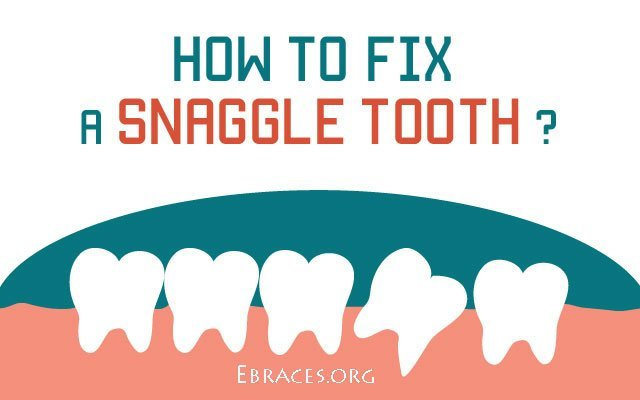 How To Fix A Snaggle Tooth  These 5 Fastest Ways. Rn To Bsn Ohio University Online. Telemarketing Lead Generation. Unsecured Loans Debt Consolidation. Adt Security Los Angeles Care One Home Health. Associate Of Applied Science Degree. Diet For Erectile Dysfunction. Supplemental Insurance Leads. Ipage Domain Registration My Choice Insurance