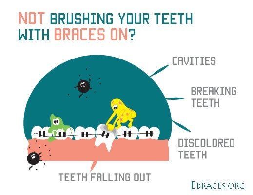 not brushing teeth with braces