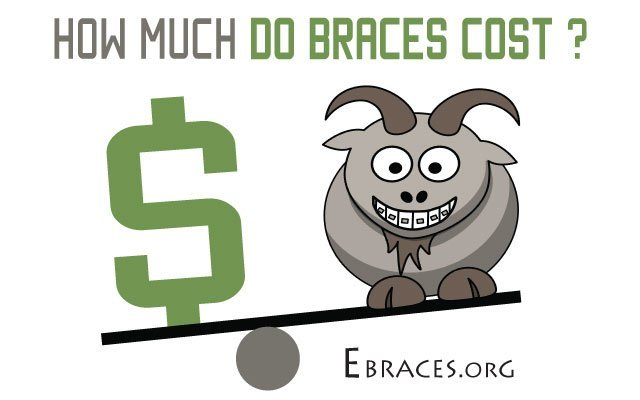 how much do braces cost