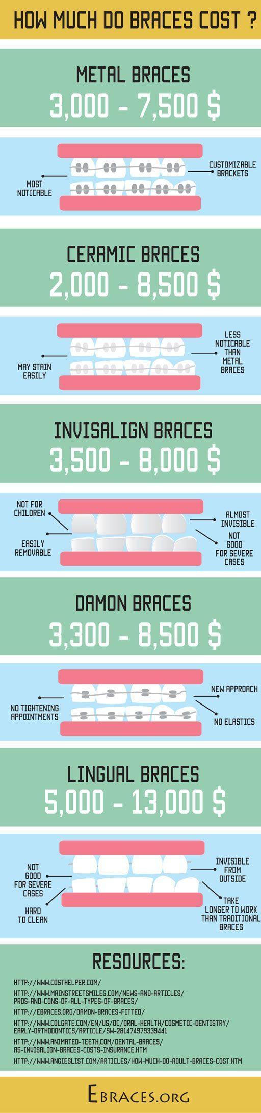 braces cost infographic