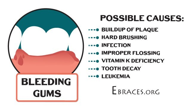 causes of bleeding gums
