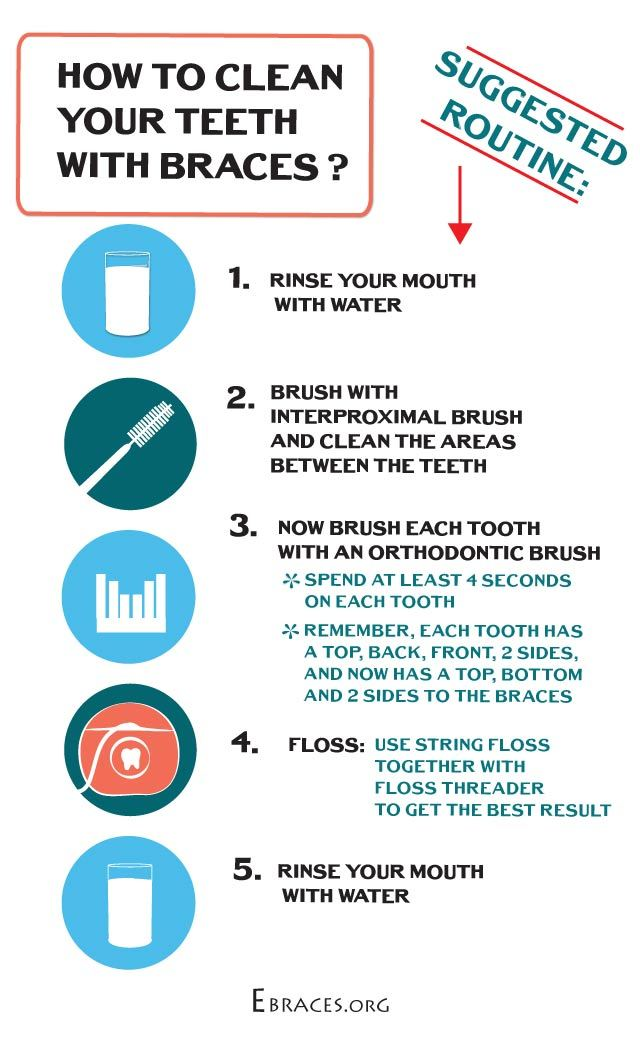 how to clean your teeth with braces