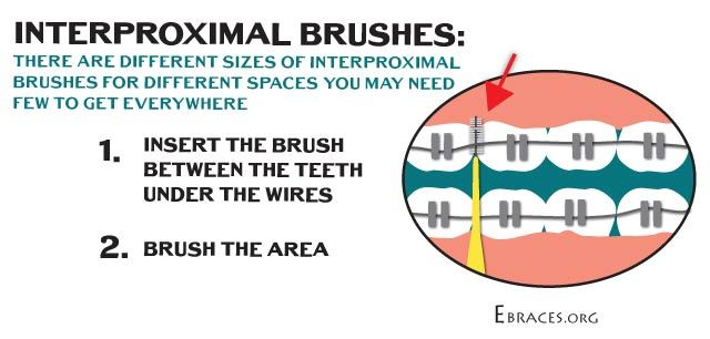 interproximal brushes for braces