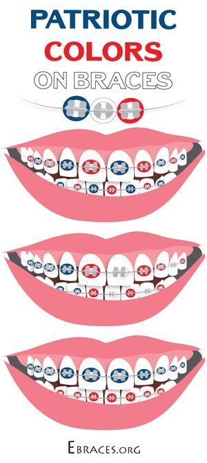 usa braces colors