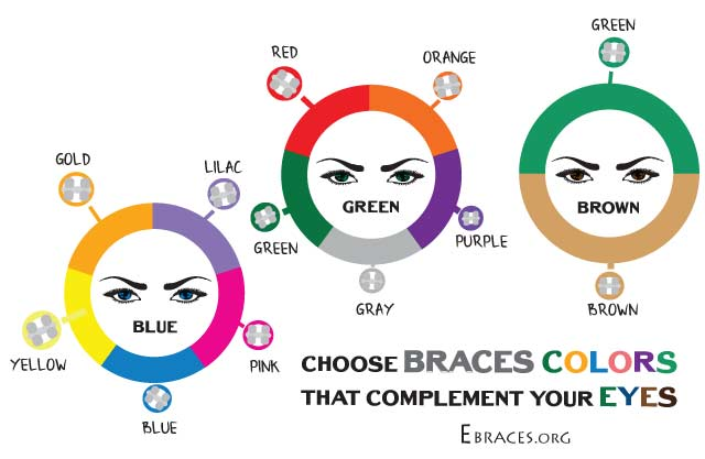 You Don 39 T Have To Be A Genius To Choose Braces Colors