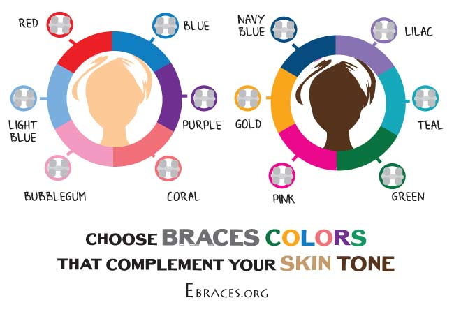 Braces Colors For Skin Tone