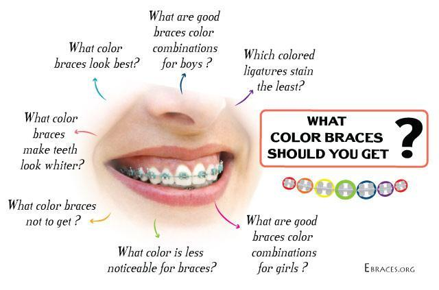 what color braces should you get