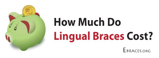 cost for lingual braces