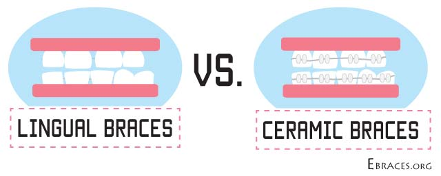 lingual braces vs ceramic braces