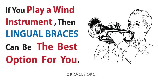 lingual braces and wind instruments