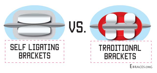 self ligating braces vs traditional braces