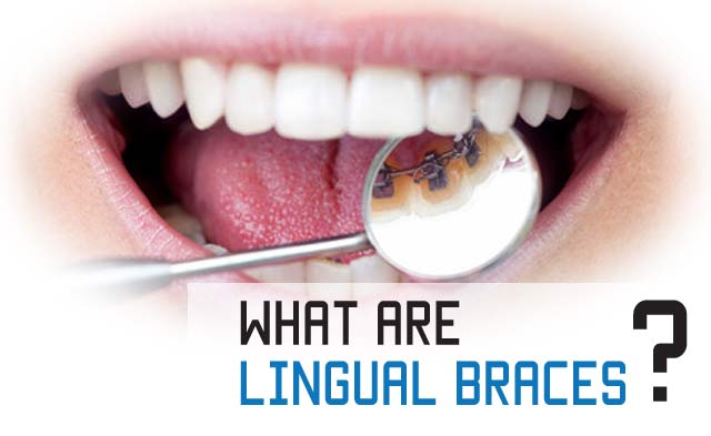 what are lingual braces