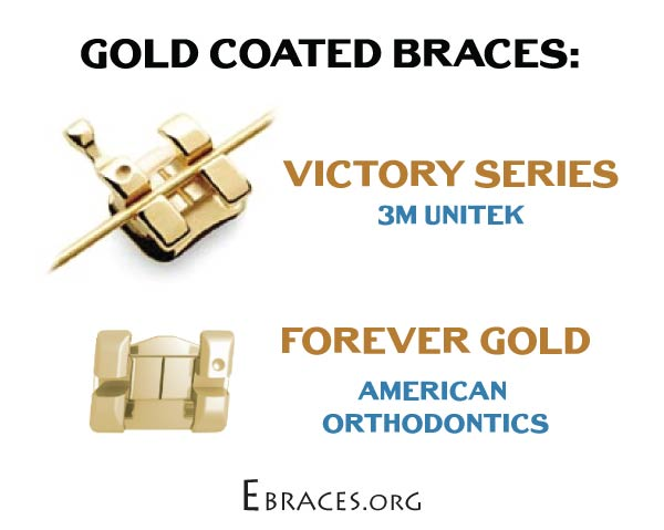 all gold braces