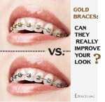 Will Gold Braces Really Make You Look Better? thumbnail