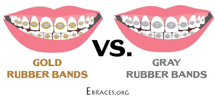 gold rubber bands braces