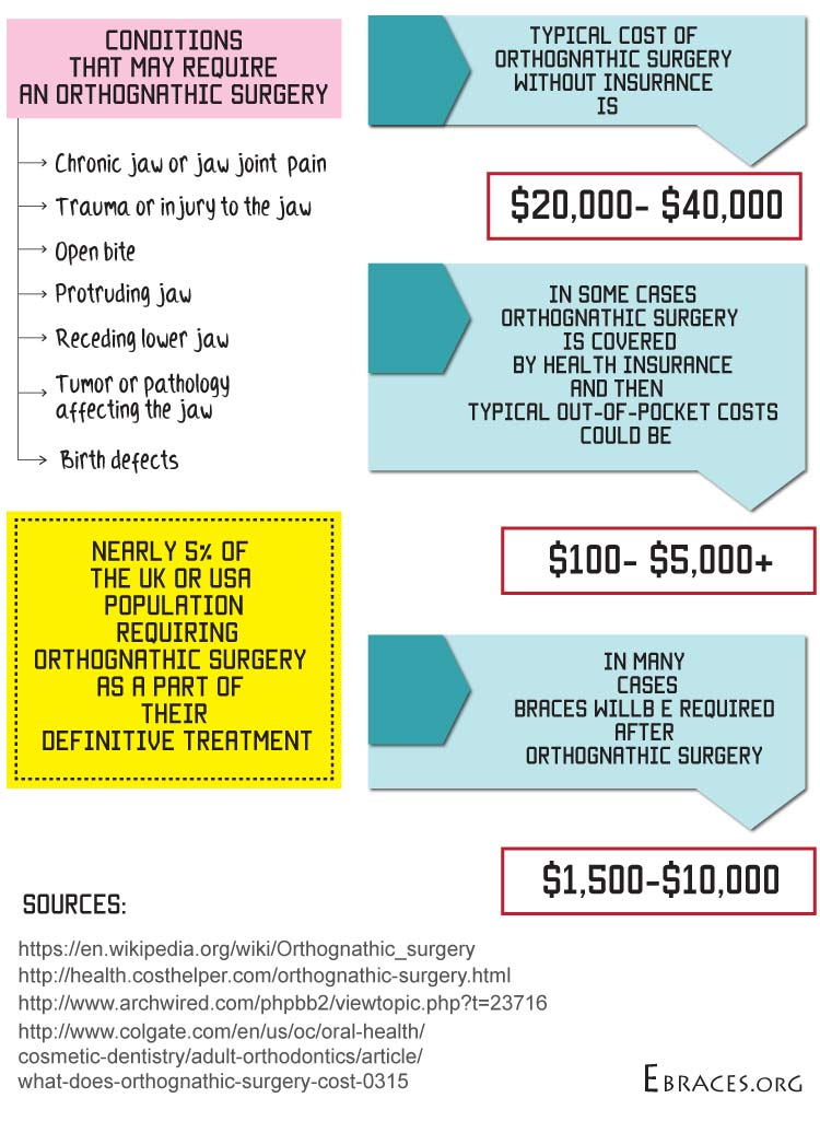 orthodontic surgery infographic