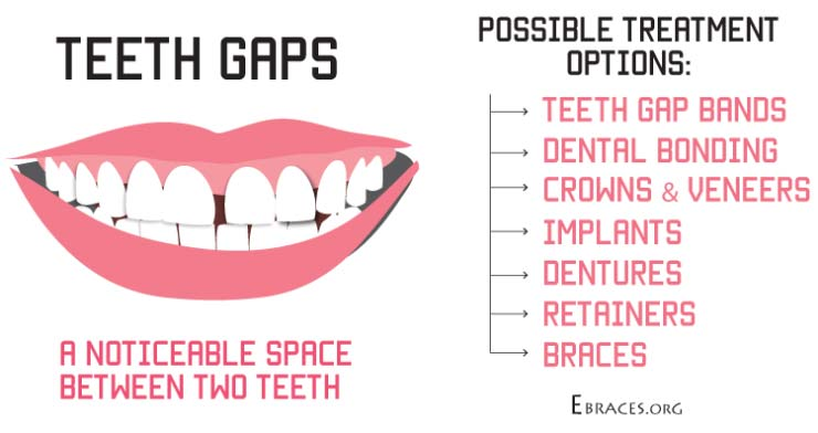 teeth gaps treatment