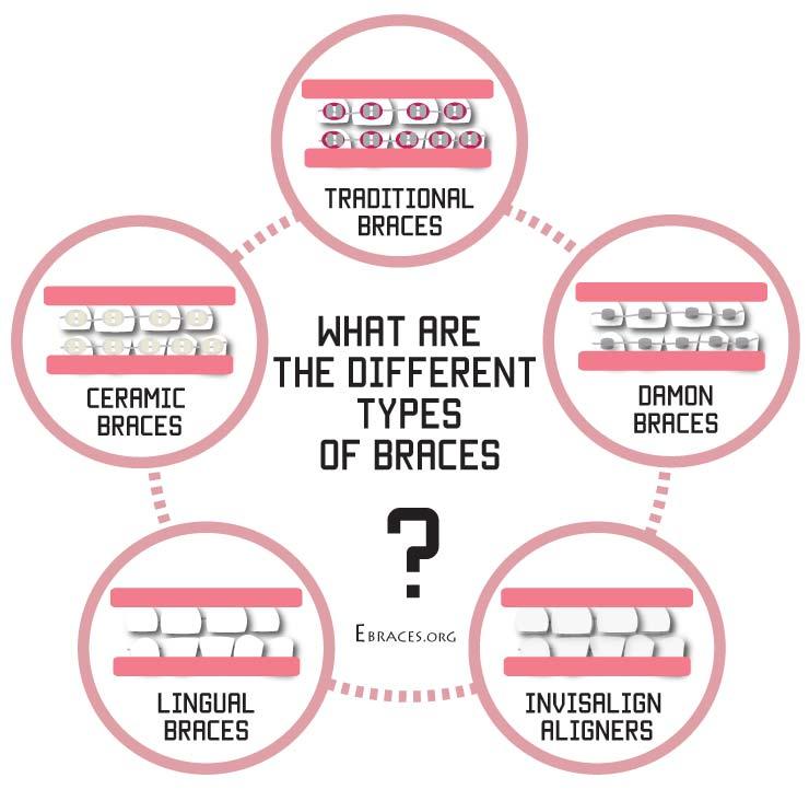 braces types