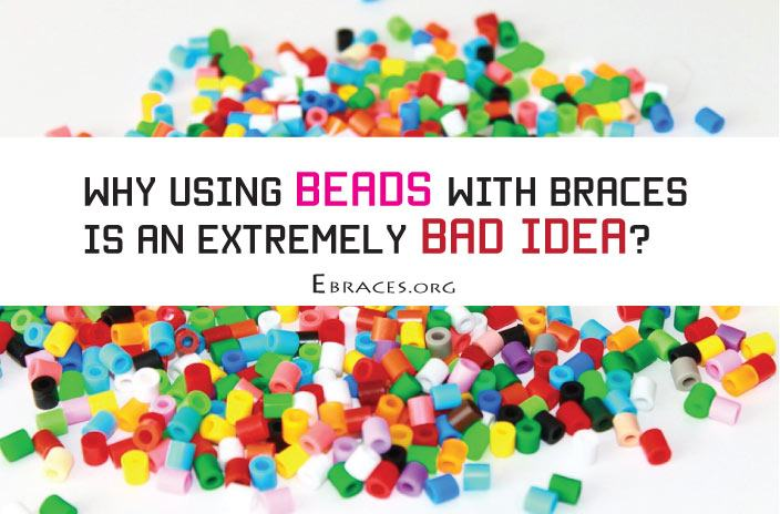 fake braces with beads