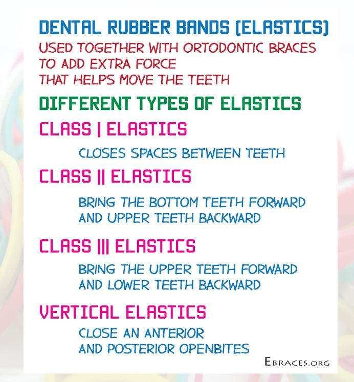 rubber bands types