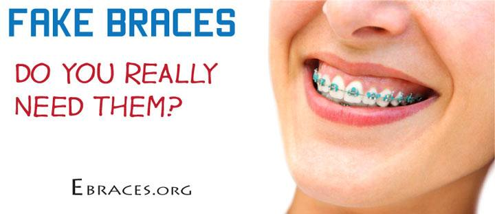 Do you really need fake braces braces can cost 2000 7500 and sometimes even more retainers tend to be a little cheaper ranging from a couple hundred dollars solutioingenieria Choice Image