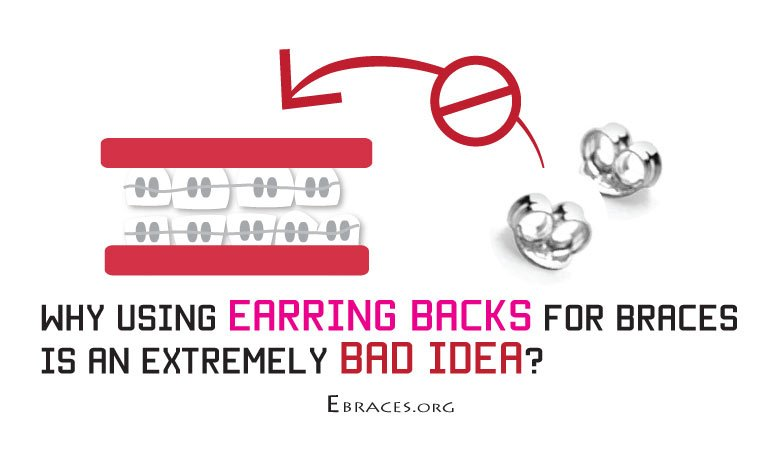 fake braces with earring backs
