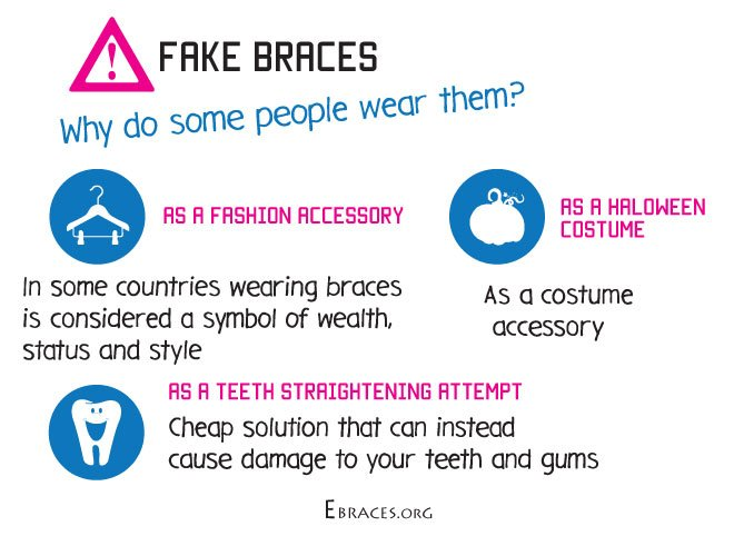 Do you really need fake braces the trend in fake braces started not too long ago when the internet made finding such items easier in some places braces are becoming not only a teeth solutioingenieria Images