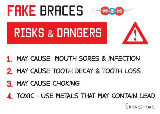 dangers of fake braces
