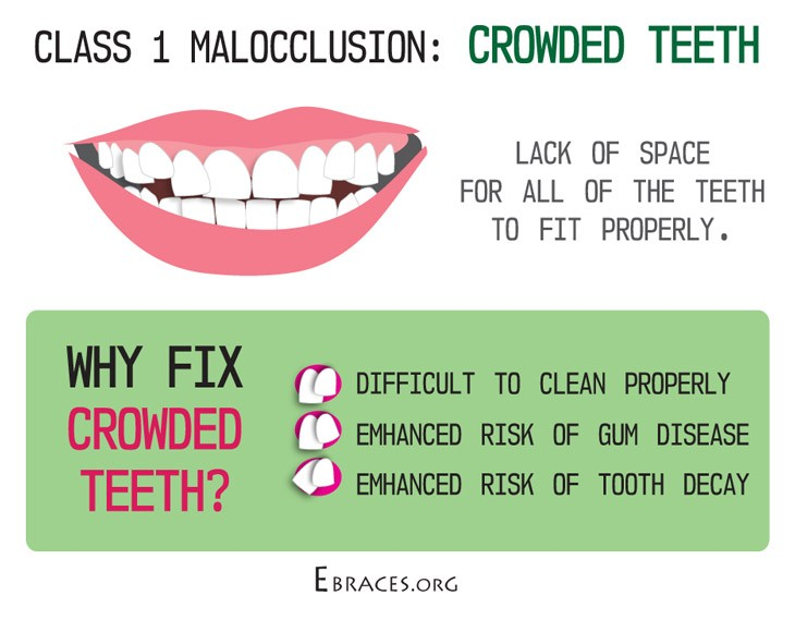 class 1 malocclusion crowding