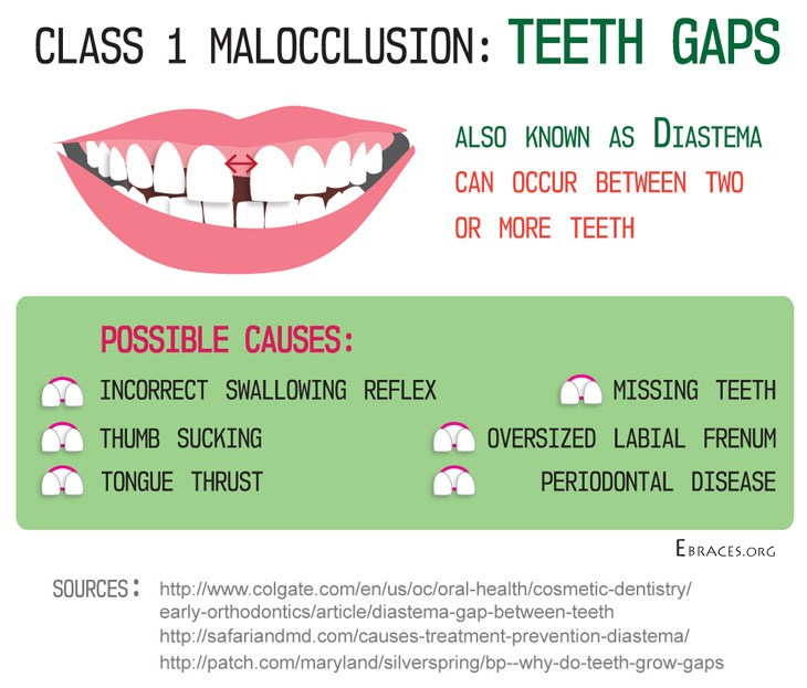 teeth gaps malocclusion