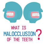 What is Malocclusion of the Teeth and How to Treat It thumbnail