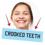 how to deal with crooked teeth