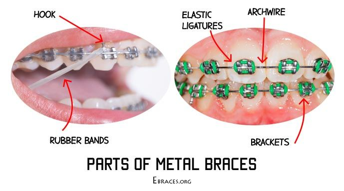 Everything you need to know about rubber bands for braces you solutioingenieria Images