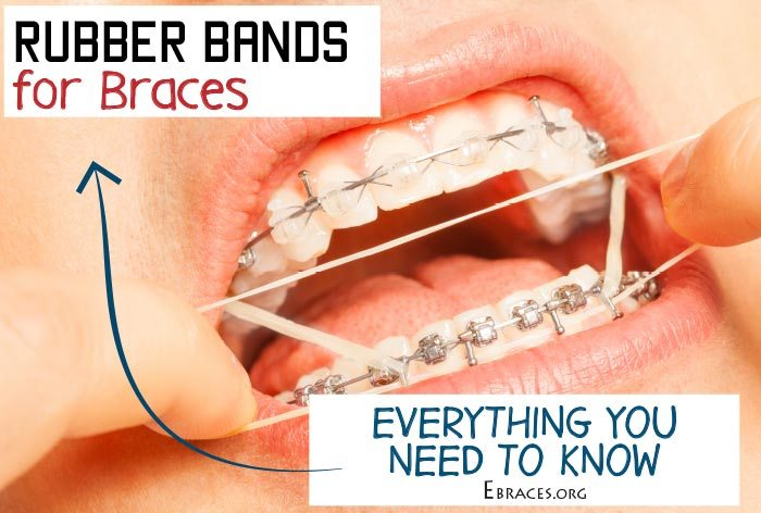 Everything you need to know about rubber bands for braces insert image solutioingenieria Images