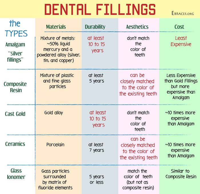 dental fillings types