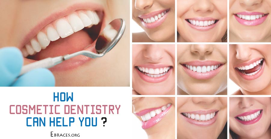 how cosmetic dentistry can help you