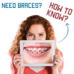 do i need braces