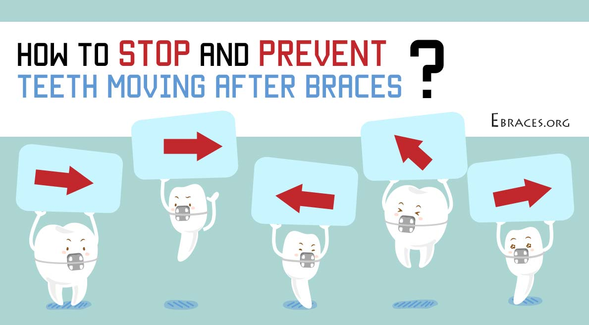 how to stop and prevent teeth from moving after braces