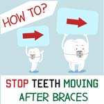 how to stop teeth moving after braces